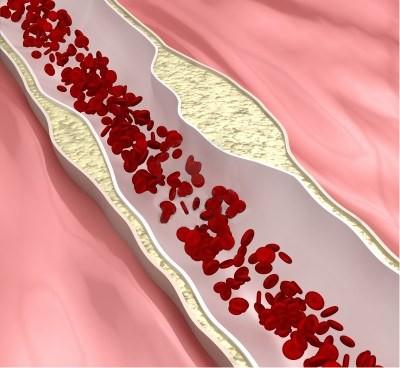 arteriosclerosis_dr_alejandro_cruz