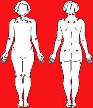 fibromialgia_puntos_de_dolor