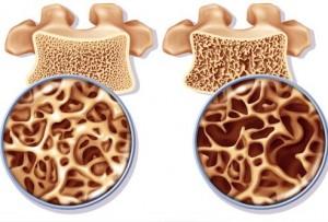 osteoporosis_hueso_dr_alejandro_cruz